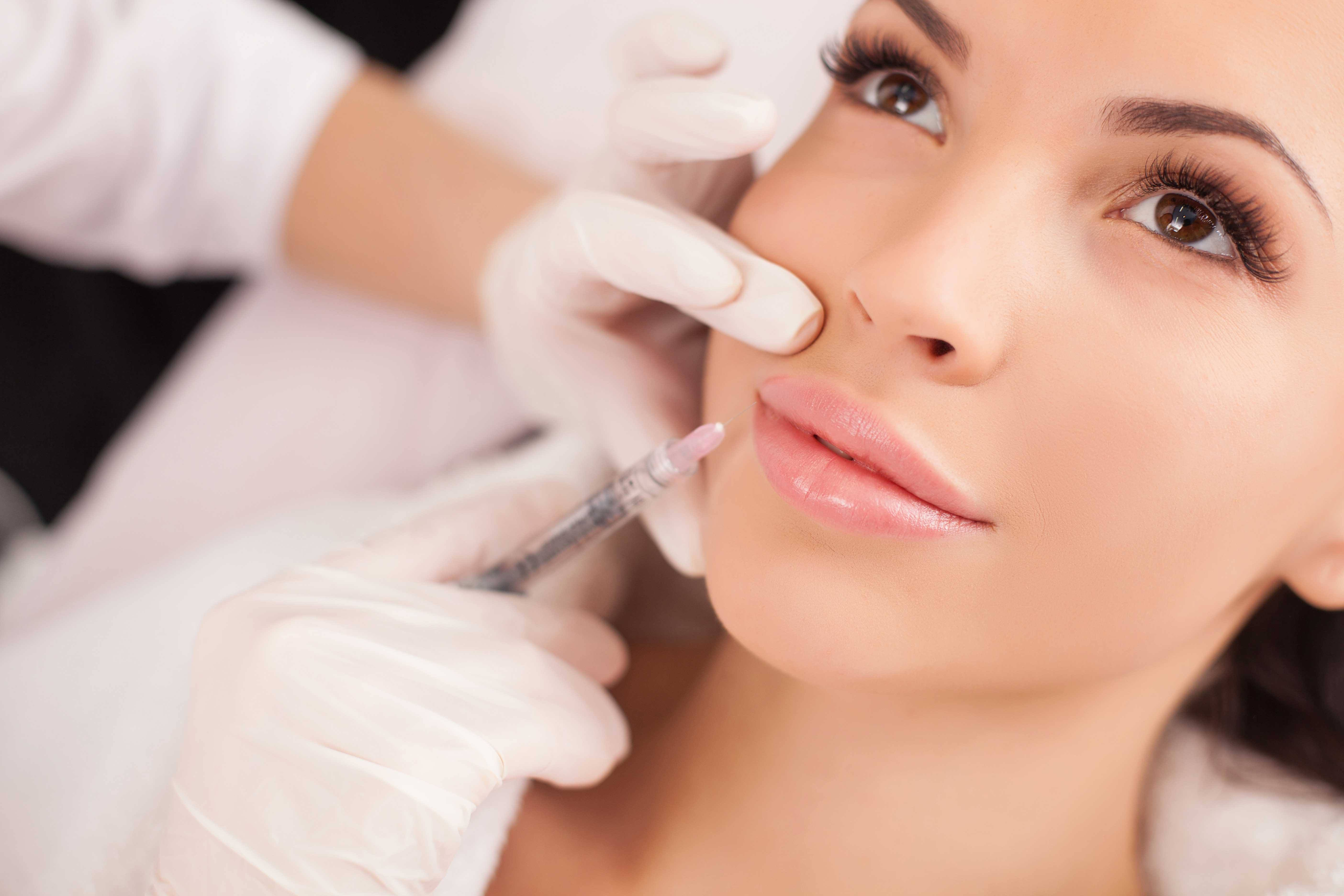 Dermal fillers in victoria with cosmetic injector monica sternalski dermal fillers explained solutioingenieria Gallery